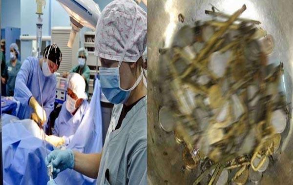 डाक्टरों ने युवक के पेट से निकाला 300 ग्राम लोहा, पेचकश और सरिया