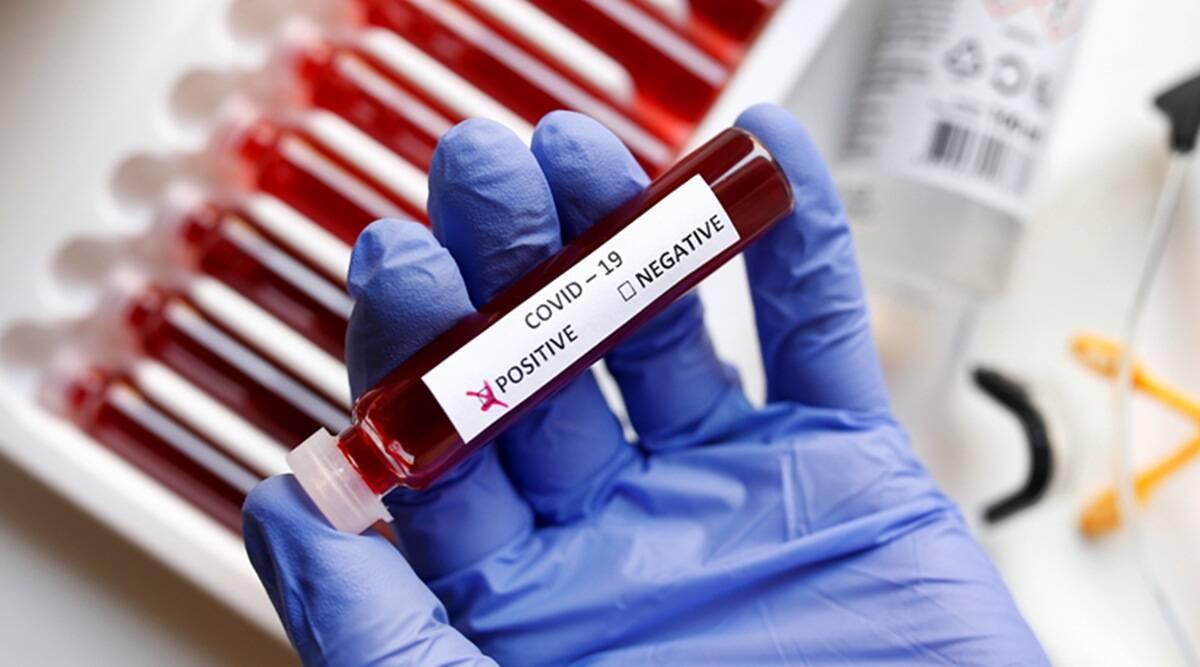 दो माह के उच्च स्तर पर पहुंचे कोरोनावायरस के नए मामले, 22,854 नए COVID-19 केस दर्ज