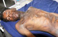भाजपा की रैली में लगाए थे झंडे, दिहाड़ी दी नहीं, जिंदा जला दिया