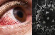 ब्लैक फ़ंगस का शिकार हो रहे बच्चे, तीन बच्चों की तो आंख निकालनी पड़ी